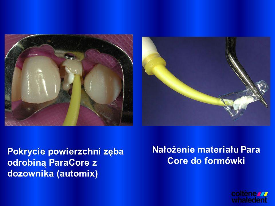 Pokrycie powierzchni zęba odrobiną ParaCore z dozownika (automix) Nałożenie materiału Para Core do formówki