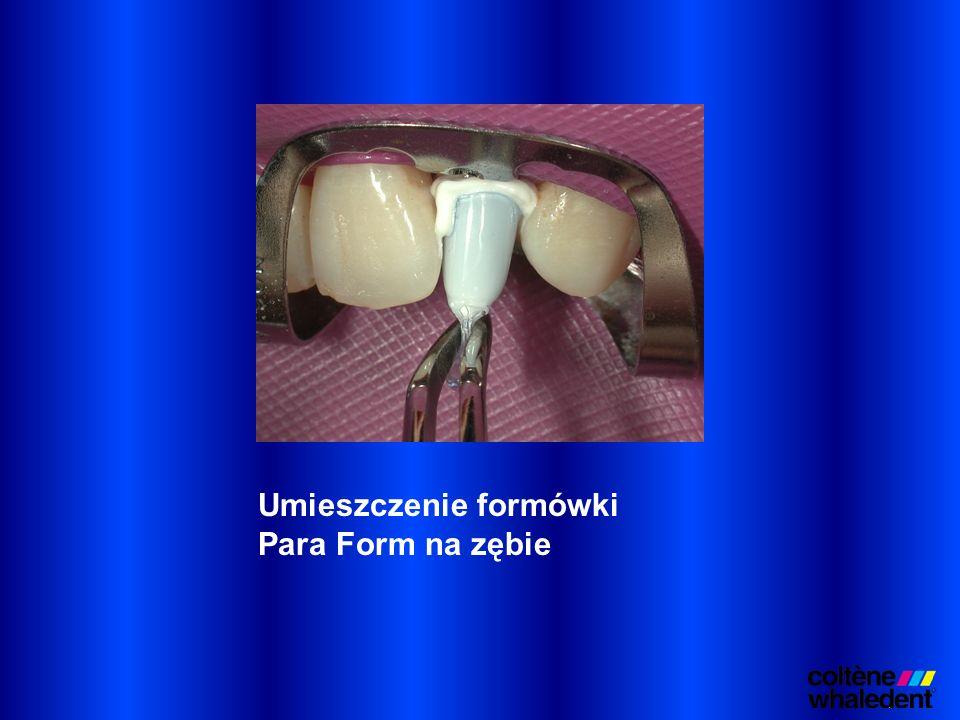 Umieszczenie formówki Para Form na zębie