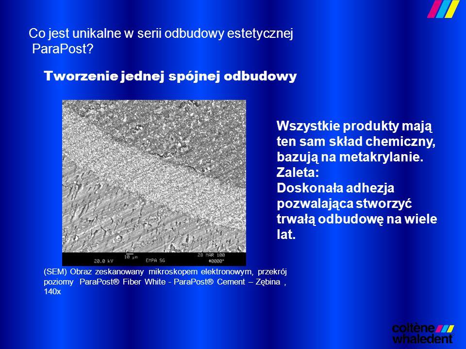 (SEM) Obraz zeskanowany mikroskopem elektronowym, przekrój poziomy ParaPost® Fiber White - ParaPost® Cement – Zębina, 140x Wszystkie produkty mają ten