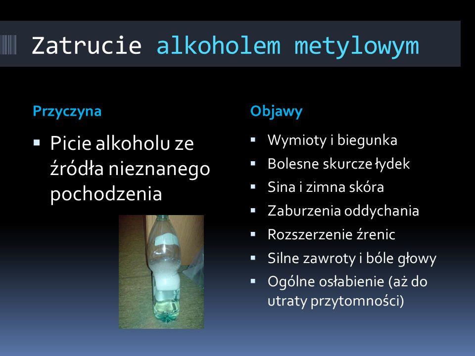 Zatrucie alkoholem metylowym PrzyczynaObjawy Picie alkoholu ze źródła nieznanego pochodzenia Wymioty i biegunka Bolesne skurcze łydek Sina i zimna skó
