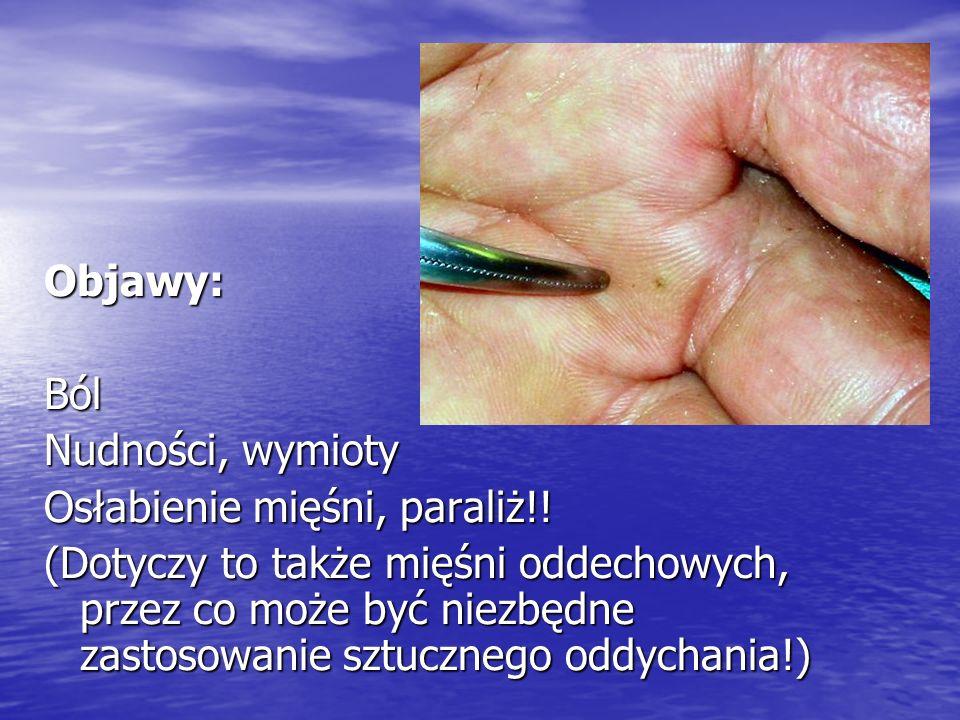 Objawy:Ból Nudności, wymioty Osłabienie mięśni, paraliż!! (Dotyczy to także mięśni oddechowych, przez co może być niezbędne zastosowanie sztucznego od