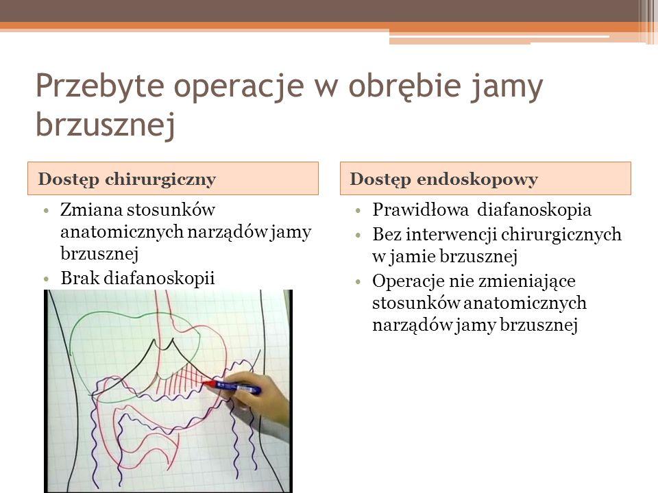 Wskazania do: Innej operacji Zastawka komorowo- otrzewnowa Operacja antyrefluksowa Pyloroplastyka Zmiana na komorowo- przedsionkową Pozostawienie w otrzewnej