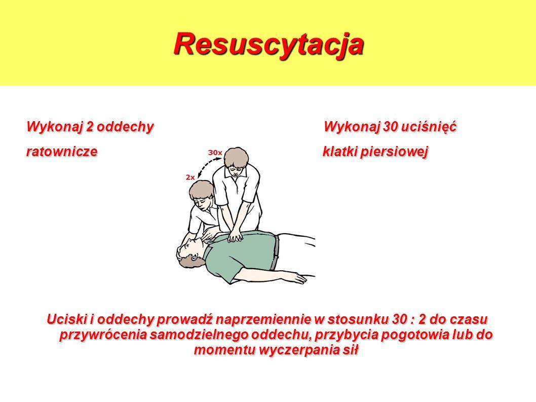 Resuscytacja Wykonaj 2 oddechy Wykonaj 30 uciśnięć ratownicze klatki piersiowej Uciski i oddechy prowadź naprzemiennie w stosunku 30 : 2 do czasu przy