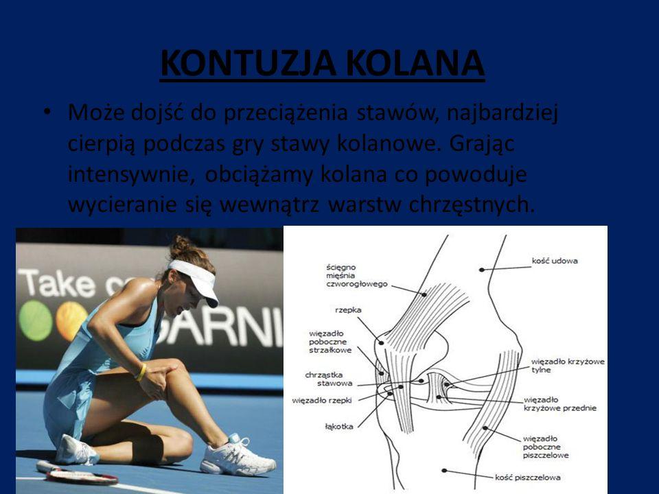 KONTUZJA KOLANA Może dojść do przeciążenia stawów, najbardziej cierpią podczas gry stawy kolanowe. Grając intensywnie, obciążamy kolana co powoduje wy