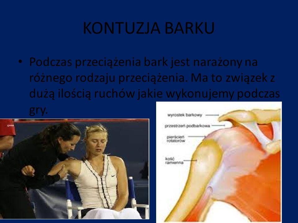 Leczenie kontuzji barku Jeżeli ból jest już dość dotkliwy, należy odpocząć od gry w tenisa i rozpocząć szybką rehabilitacje aby uniknąć operacji.