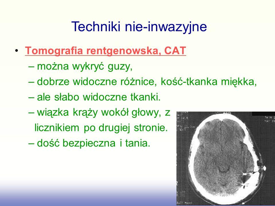 Tomografia rentgenowska, CAT –można wykryć guzy, –dobrze widoczne różnice, kość-tkanka miękka, –ale słabo widoczne tkanki. –wiązka krąży wokół głowy,