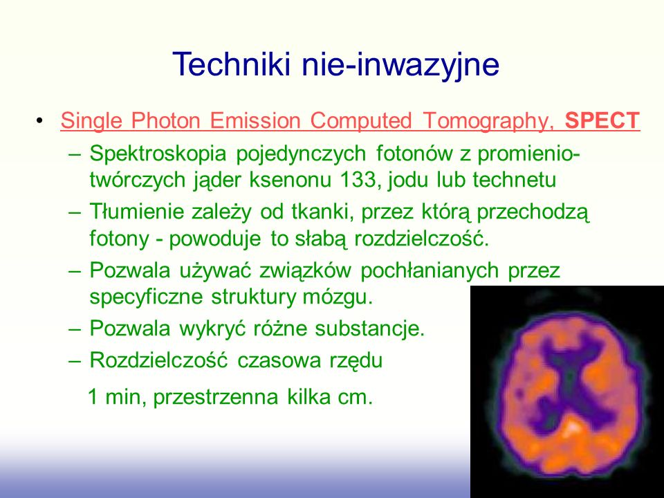 Single Photon Emission Computed Tomography, SPECTSingle Photon Emission Computed Tomography, SPECT –Spektroskopia pojedynczych fotonów z promienio- tw