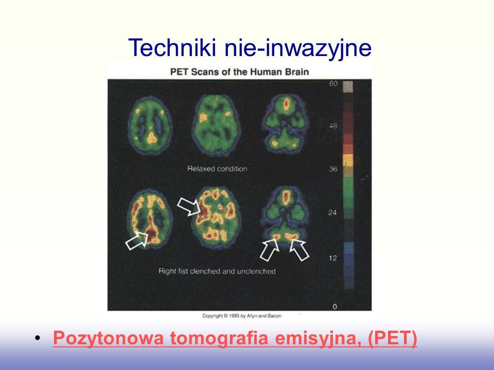 Pozytonowa tomografia emisyjna, (PET) Techniki nie-inwazyjne