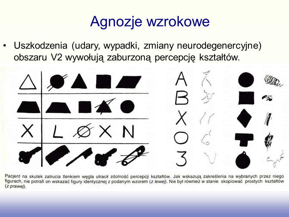 Uszkodzenia szlaku do IT i zakrętu kątowego prowadzą do agnozji wzrokowej, czyli niezdolności do nadania sensu temu co się widzi. agnozji wzrokowej –N