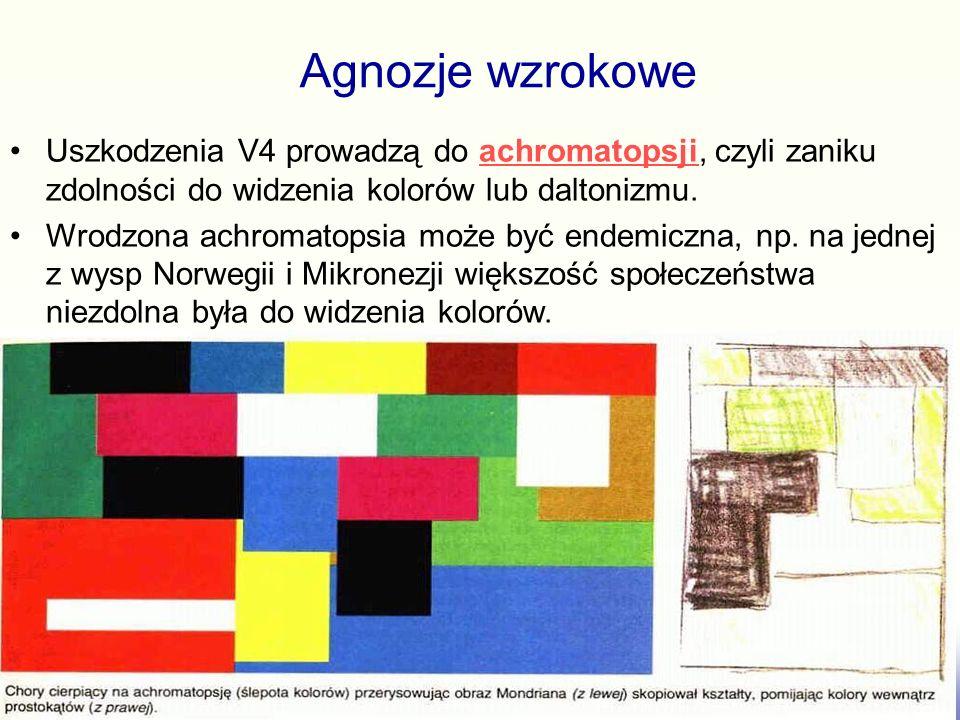 Uszkodzenia (udary, wypadki, zmiany neurodegenercyjne) obszaru V2 wywołują zaburzoną percepcję kształtów. Agnozje wzrokowe