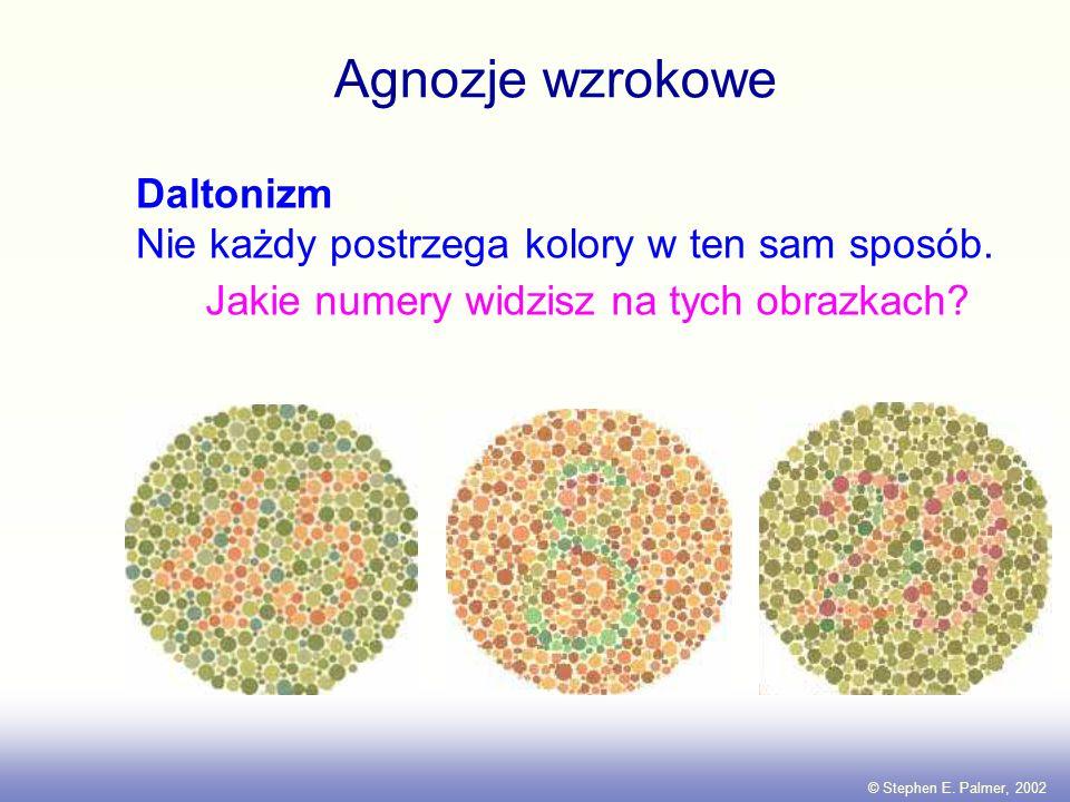 Uszkodzenia V4 prowadzą do achromatopsji, czyli zaniku zdolności do widzenia kolorów lub daltonizmu.achromatopsji Wrodzona achromatopsia może być ende