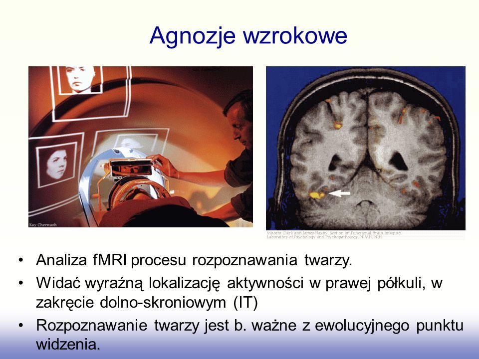 Uszkodzenia powodują prozopagnozję, niezdolość do rozpoznawania twarzy;prozopagnozję –wszystkie twarze wydają się wówczas podobne –można nawet nie odr