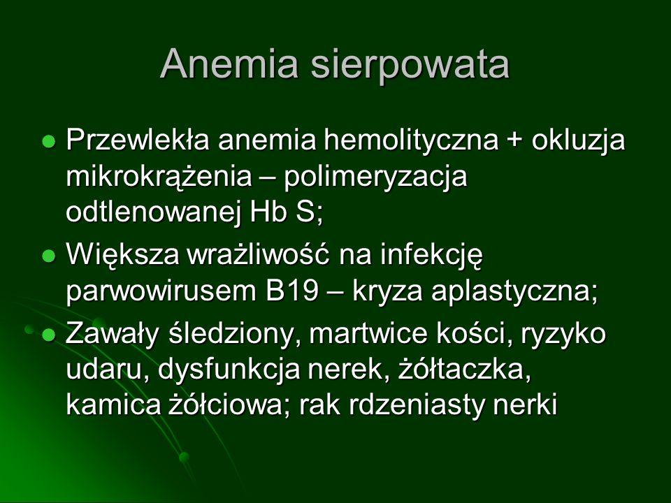 klasyfikacja WHO A: nabłonkowy, wrzecionowatokomórkowy, rdzenny; monomorficzne komórki (wrzecionowate/owalne) bez atypii, mało/brak limfocytów; dobre rokowanie A: nabłonkowy, wrzecionowatokomórkowy, rdzenny; monomorficzne komórki (wrzecionowate/owalne) bez atypii, mało/brak limfocytów; dobre rokowanie AB: mieszany; obszary jak A + obszary z liczniejszymi limfocytami AB: mieszany; obszary jak A + obszary z liczniejszymi limfocytami B: przypomina grasicę płodu/niemowlaka B: przypomina grasicę płodu/niemowlaka B1 bogaty w limfocyty B1 bogaty w limfocyty B2 korowy B2 korowy B3 niewielka atypia, mało limfocytów B3 niewielka atypia, mało limfocytów C: thymic carcinoma C: thymic carcinoma