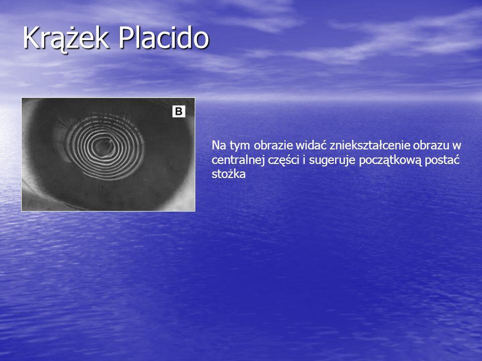 Krążek Placido Na tym obrazie widać zniekształcenie obrazu w centralnej części i sugeruje początkową postać stożka