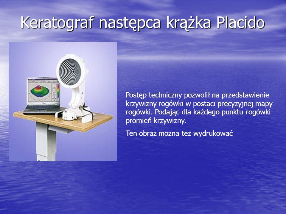 Keratograf następca krążka Placido Postęp techniczny pozwolił na przedstawienie krzywizny rogówki w postaci precyzyjnej mapy rogówki. Podając dla każd