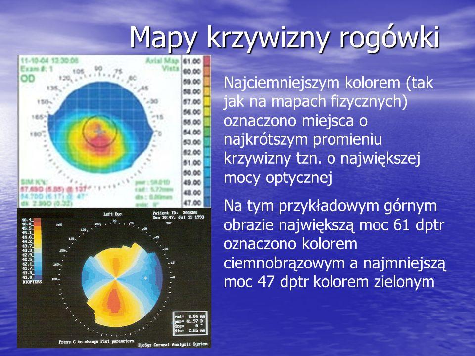 Mapy krzywizny rogówki Najciemniejszym kolorem (tak jak na mapach fizycznych) oznaczono miejsca o najkrótszym promieniu krzywizny tzn. o największej m