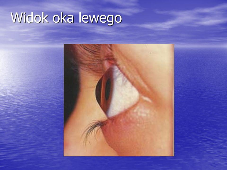 Widok oka lewego