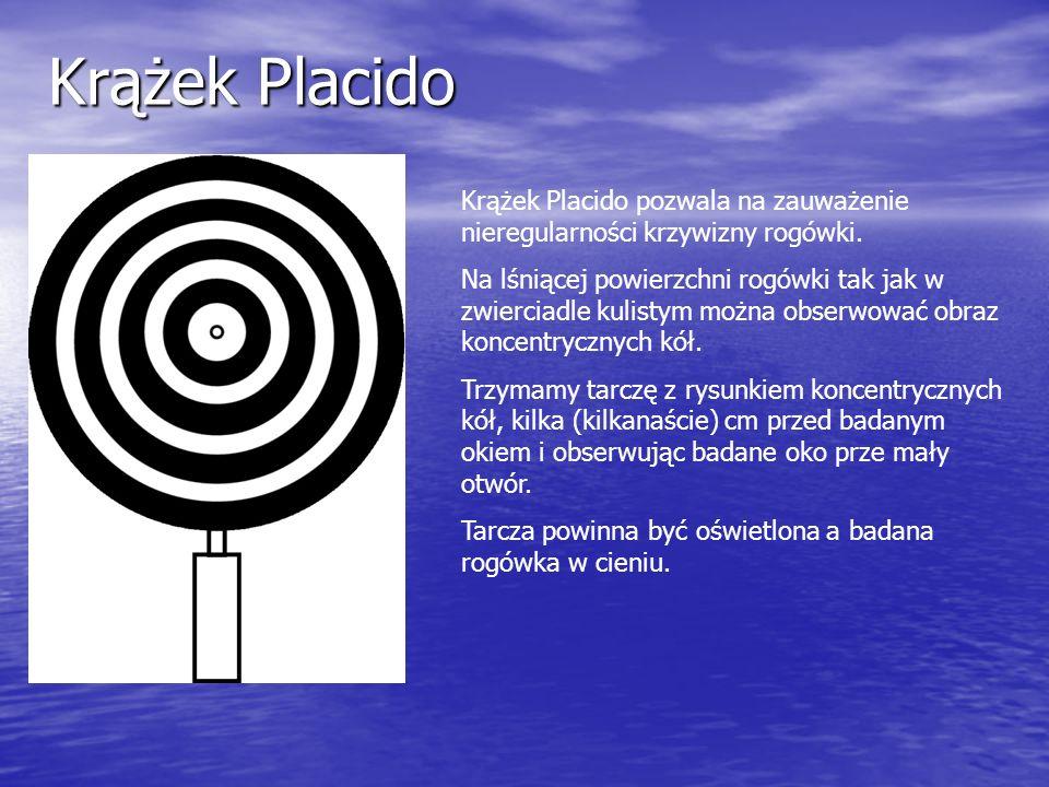 Krążek Placido Krążek Placido pozwala na zauważenie nieregularności krzywizny rogówki. Na lśniącej powierzchni rogówki tak jak w zwierciadle kulistym