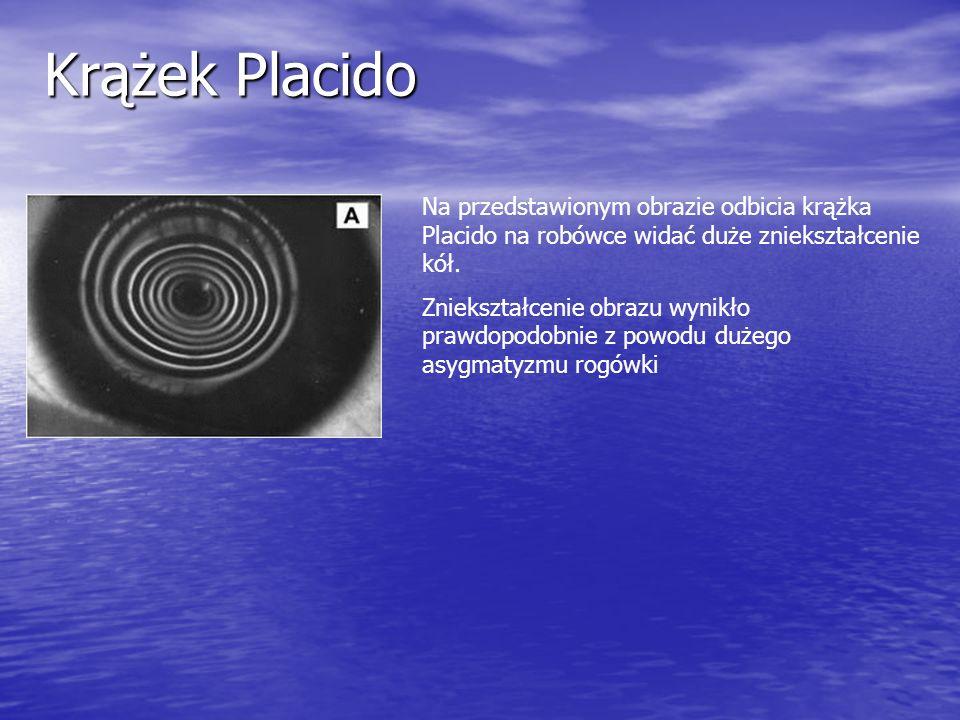 Krążek Placido Na przedstawionym obrazie odbicia krążka Placido na robówce widać duże zniekształcenie kół. Zniekształcenie obrazu wynikło prawdopodobn