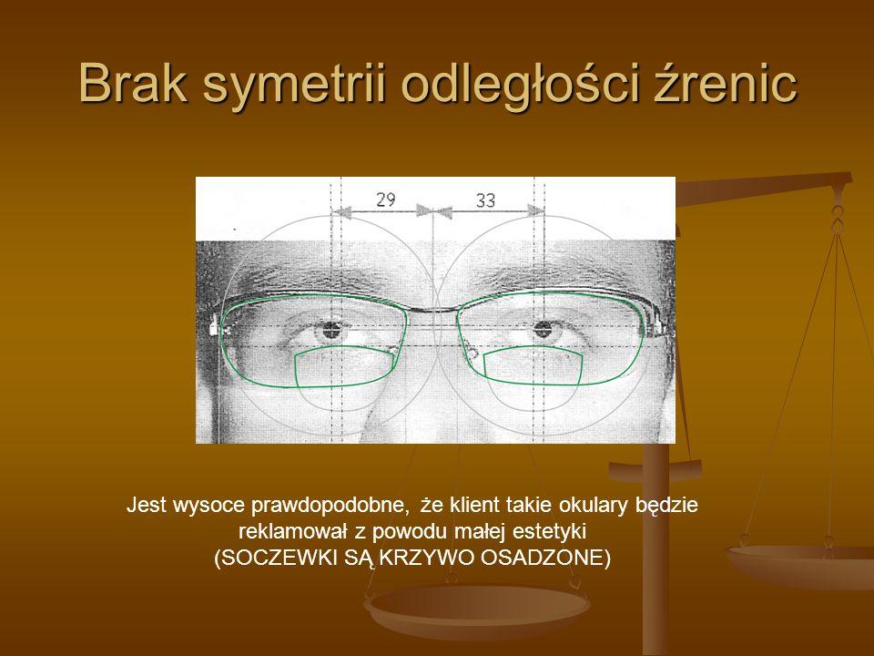Brak symetrii odległości źrenic Jest wysoce prawdopodobne, że klient takie okulary będzie reklamował z powodu małej estetyki (SOCZEWKI SĄ KRZYWO OSADZ