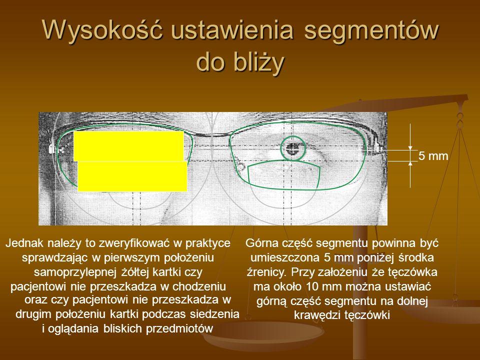 Wysokość ustawienia segmentów do bliży Górna część segmentu powinna być umieszczona 5 mm poniżej środka źrenicy. Przy założeniu że tęczówka ma około 1