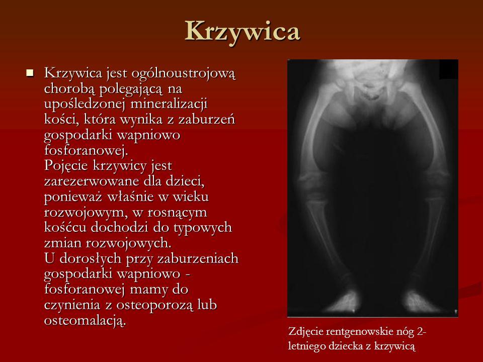 Krzywica Krzywica jest ogólnoustrojową chorobą polegającą na upośledzonej mineralizacji kości, która wynika z zaburzeń gospodarki wapniowo fosforanowej.