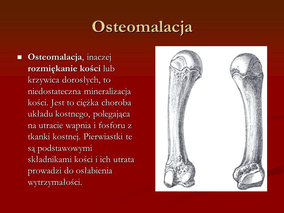 Osteomalacja Osteomalacja, inaczej rozmiękanie kości lub krzywica dorosłych, to niedostateczna mineralizacja kości.