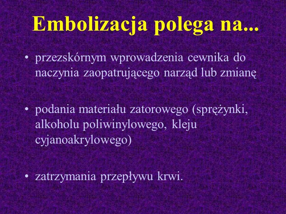 Embolizacja polega na... przezskórnym wprowadzenia cewnika do naczynia zaopatrującego narząd lub zmianę podania materiału zatorowego (sprężynki, alkoh