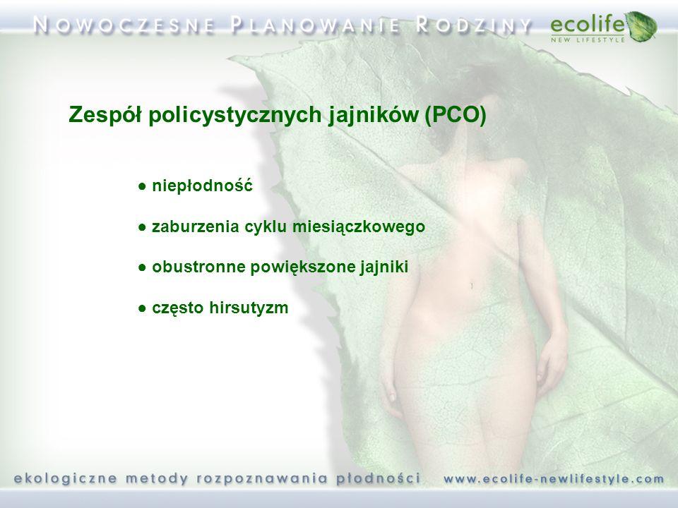 Zespół policystycznych jajników (PCO) niepłodność zaburzenia cyklu miesiączkowego obustronne powiększone jajniki często hirsutyzm