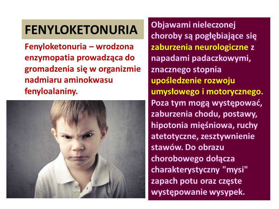 FENYLOKETONURIA Fenyloketonuria – wrodzona enzymopatia prowadząca do gromadzenia się w organizmie nadmiaru aminokwasu fenyloalaniny. Objawami nieleczo