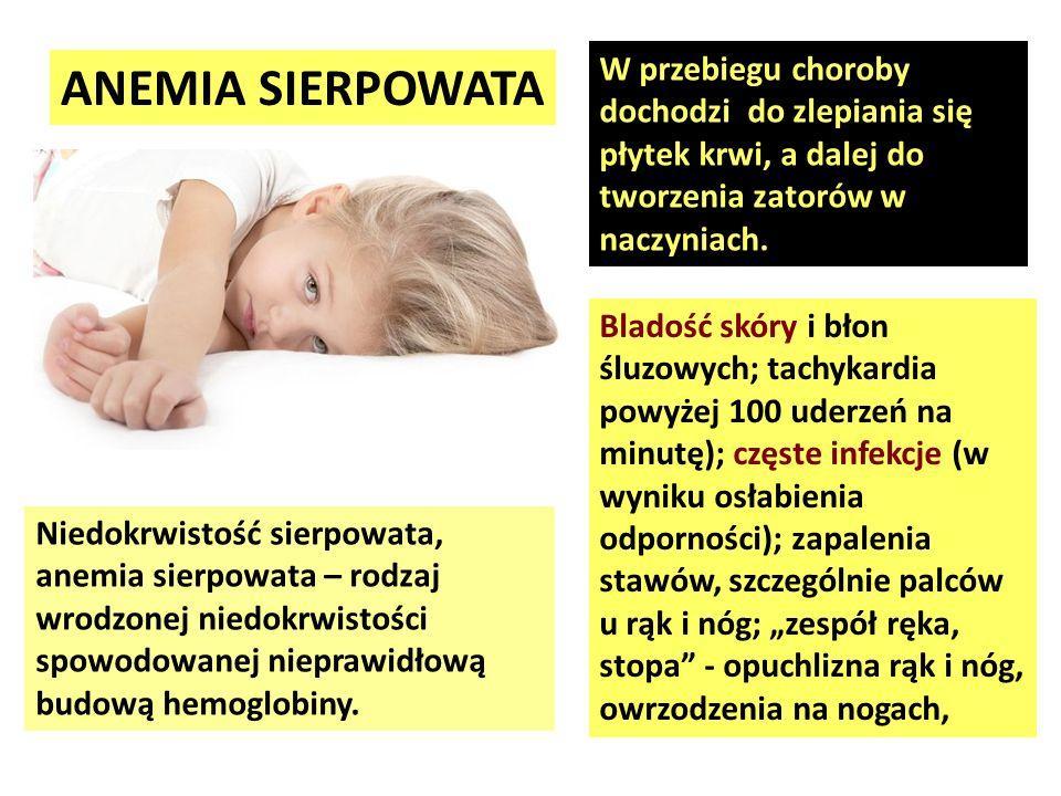 ANEMIA SIERPOWATA Niedokrwistość sierpowata, anemia sierpowata – rodzaj wrodzonej niedokrwistości spowodowanej nieprawidłową budową hemoglobiny. Blado