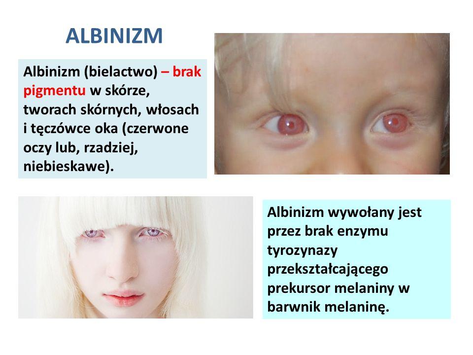 Albinizm (bielactwo) – brak pigmentu w skórze, tworach skórnych, włosach i tęczówce oka (czerwone oczy lub, rzadziej, niebieskawe). ALBINIZM Albinizm