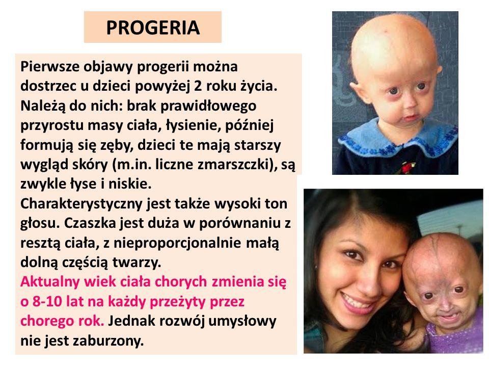 Pierwsze objawy progerii można dostrzec u dzieci powyżej 2 roku życia. Należą do nich: brak prawidłowego przyrostu masy ciała, łysienie, później formu