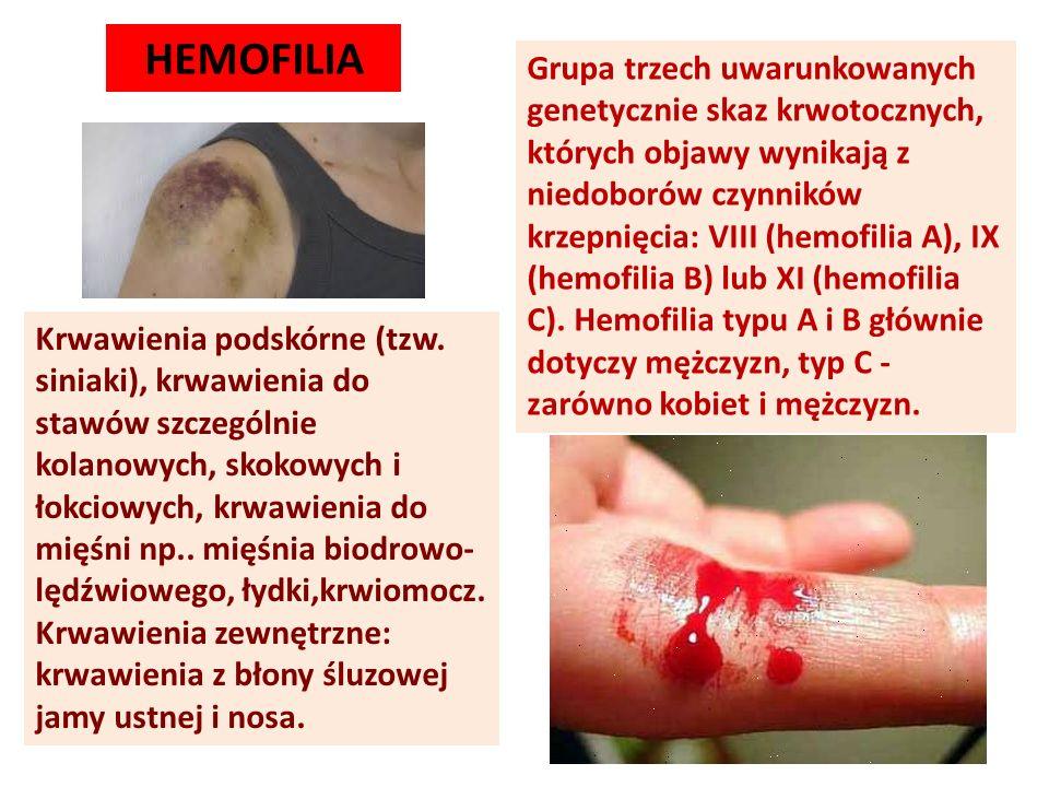 Grupa trzech uwarunkowanych genetycznie skaz krwotocznych, których objawy wynikają z niedoborów czynników krzepnięcia: VIII (hemofilia A), IX (hemofil