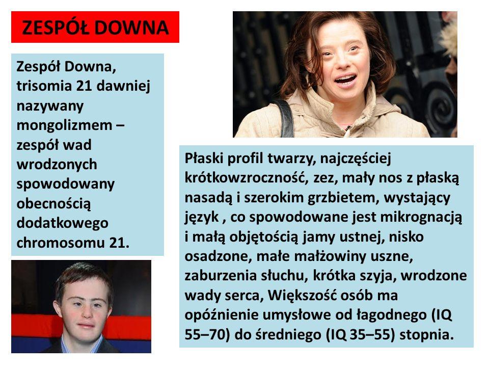 ZESPÓŁ DOWNA Zespół Downa, trisomia 21 dawniej nazywany mongolizmem – zespół wad wrodzonych spowodowany obecnością dodatkowego chromosomu 21. Płaski p