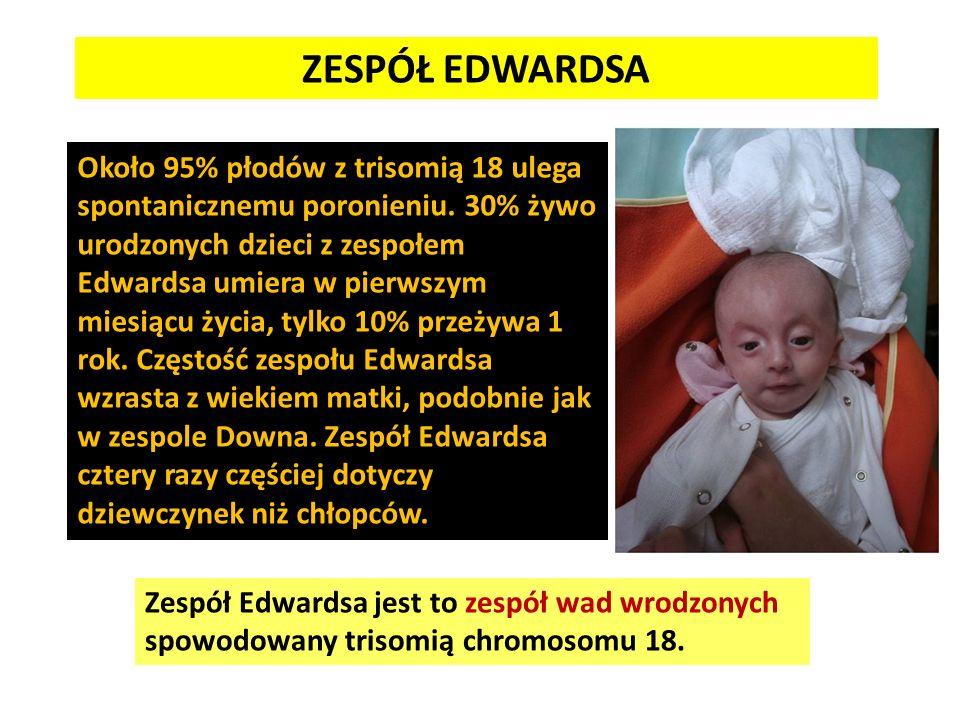 Około 95% płodów z trisomią 18 ulega spontanicznemu poronieniu. 30% żywo urodzonych dzieci z zespołem Edwardsa umiera w pierwszym miesiącu życia, tylk