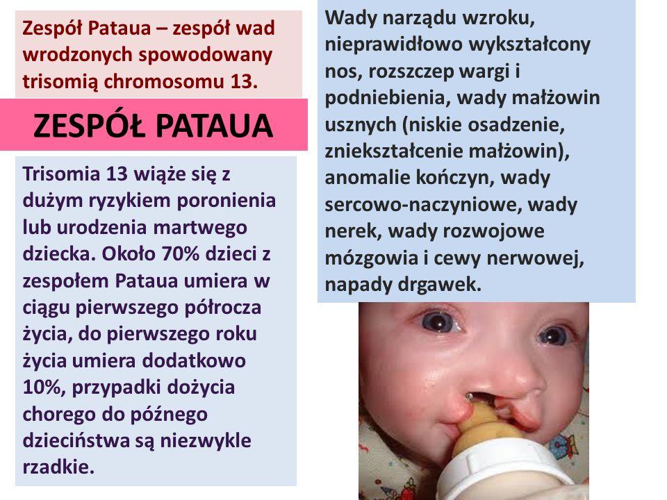 Zespół Pataua – zespół wad wrodzonych spowodowany trisomią chromosomu 13. Trisomia 13 wiąże się z dużym ryzykiem poronienia lub urodzenia martwego dzi