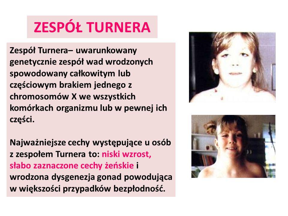 ZESPÓŁ TURNERA Zespół Turnera– uwarunkowany genetycznie zespół wad wrodzonych spowodowany całkowitym lub częściowym brakiem jednego z chromosomów X we
