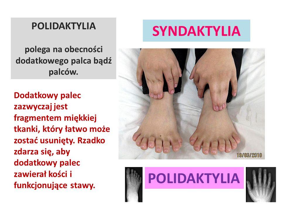 POLIDAKTYLIA SYNDAKTYLIA POLIDAKTYLIA polega na obecności dodatkowego palca bądź palców. Dodatkowy palec zazwyczaj jest fragmentem miękkiej tkanki, kt
