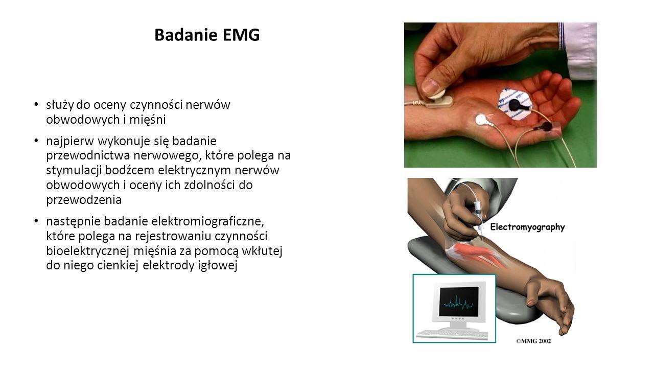 Badanie EMG służy do oceny czynności nerwów obwodowych i mięśni najpierw wykonuje się badanie przewodnictwa nerwowego, które polega na stymulacji bodź