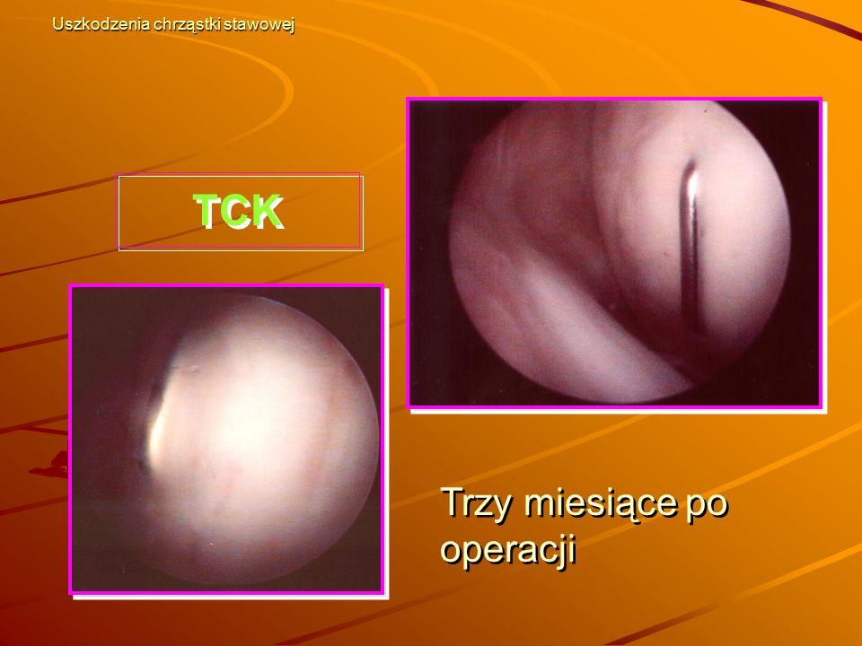Trzy miesiące po operacji TCK Uszkodzenia chrząstki stawowej