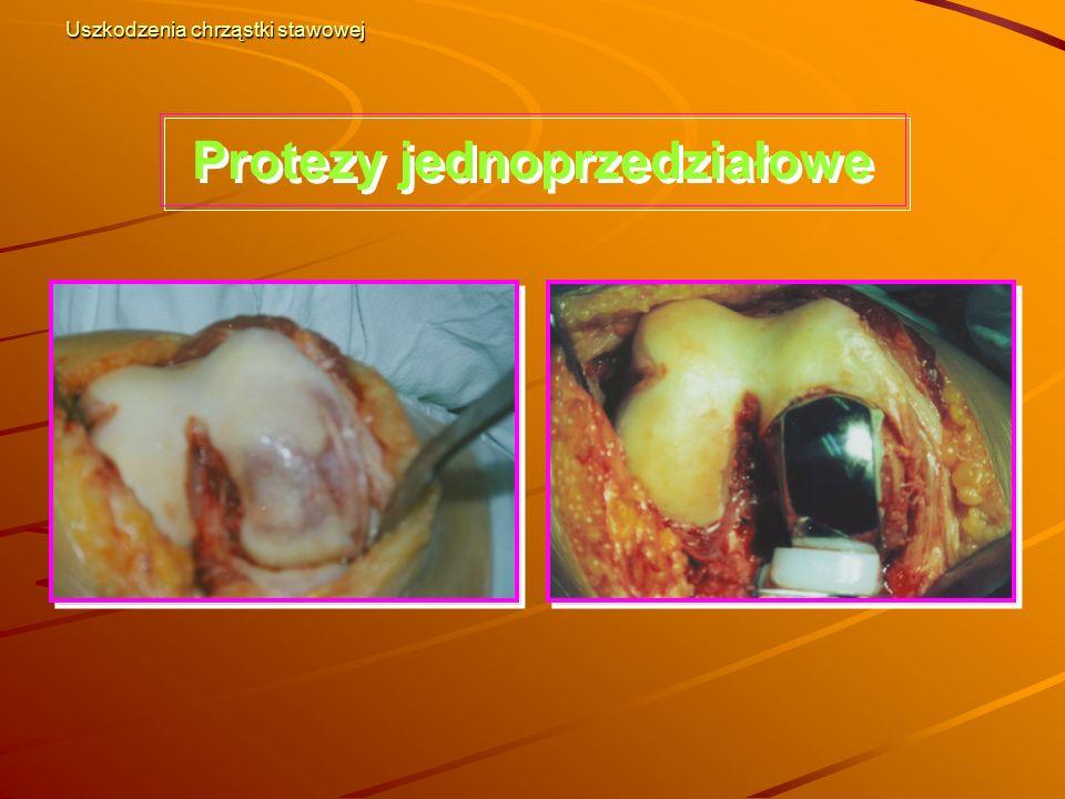 Protezy jednoprzedziałowe Uszkodzenia chrząstki stawowej
