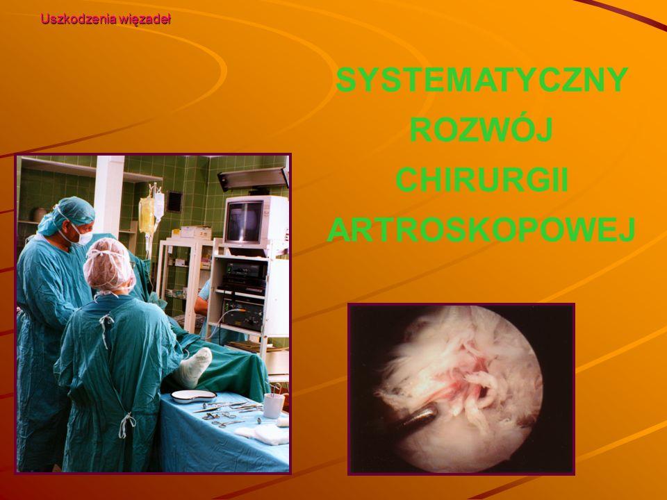 SYSTEMATYCZNY ROZWÓJ CHIRURGII ARTROSKOPOWEJ Uszkodzenia więzadeł