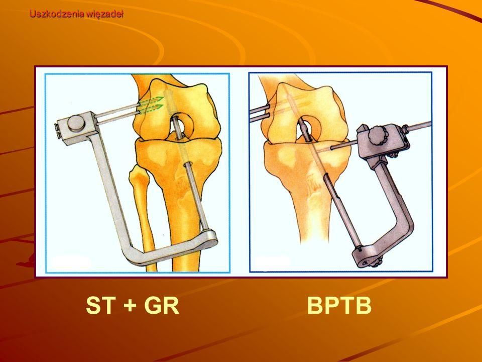 ST + GRBPTB Uszkodzenia więzadeł