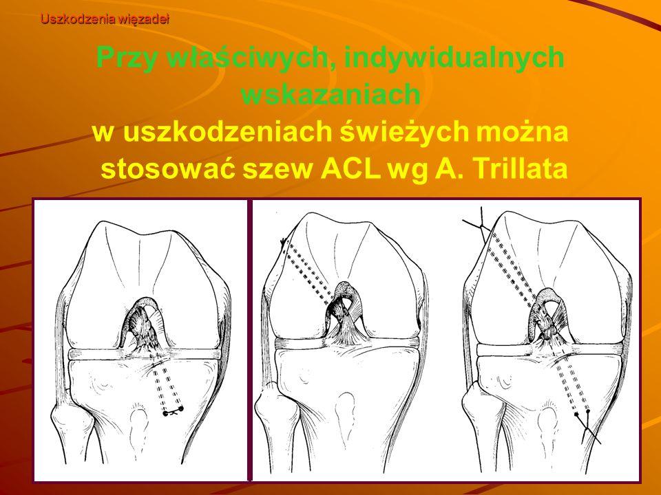 Przy właściwych, indywidualnych wskazaniach w uszkodzeniach świeżych można stosować szew ACL wg A. Trillata Uszkodzenia więzadeł