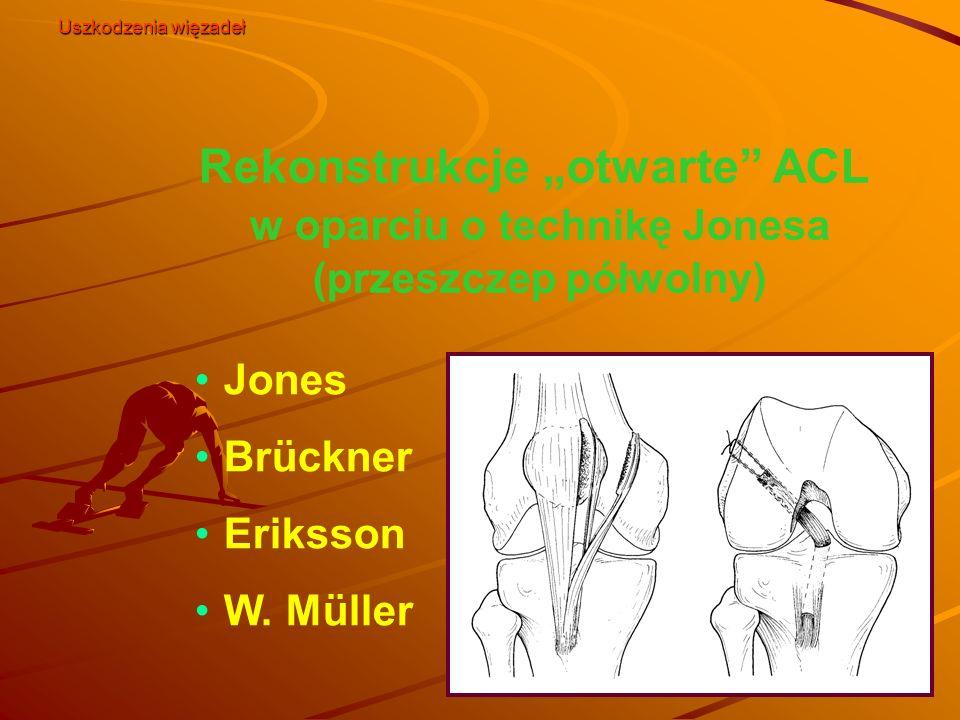 """Rekonstrukcje """"otwarte"""" ACL w oparciu o technikę Jonesa (przeszczep półwolny) Jones Brückner Eriksson W. Müller Uszkodzenia więzadeł"""