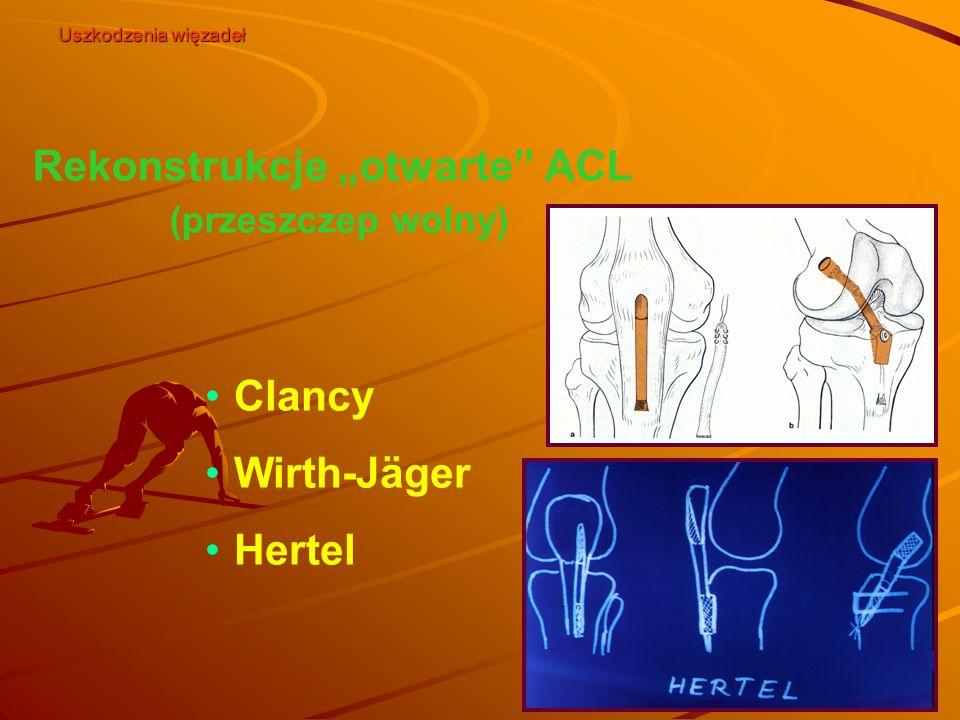 """Rekonstrukcje """"otwarte"""" ACL (przeszczep wolny) Clancy Wirth-Jäger Hertel Uszkodzenia więzadeł"""