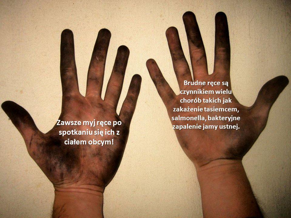 Zawsze myj ręce po spotkaniu się ich z ciałem obcym.