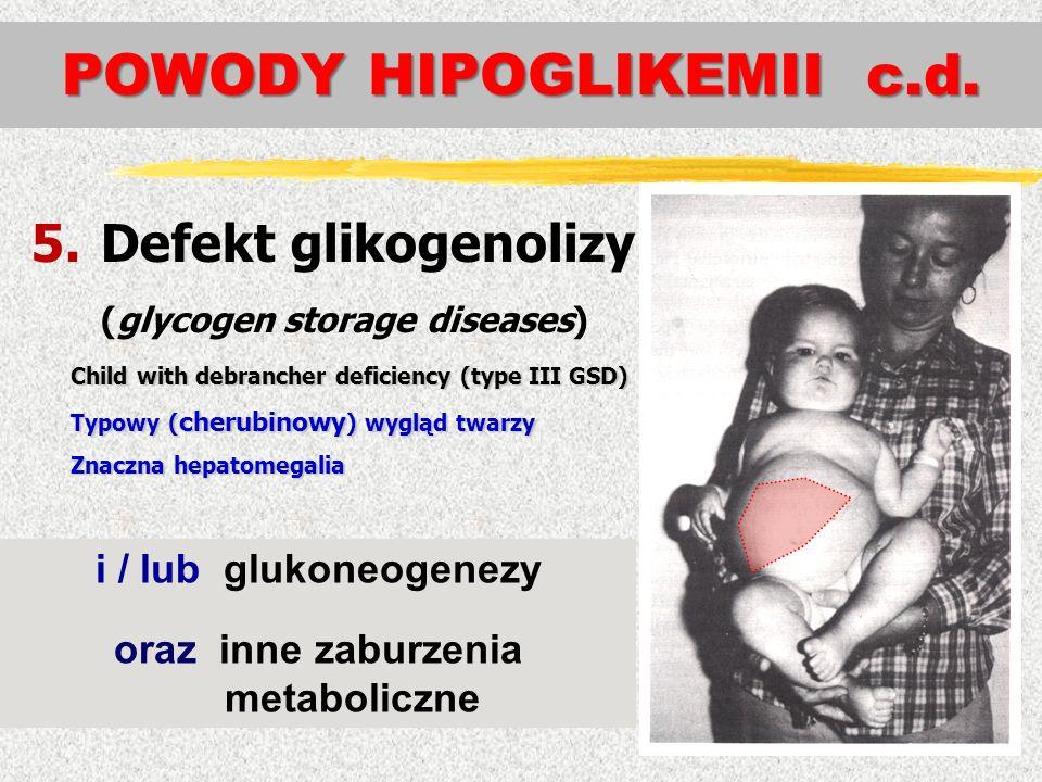 5.Defekt glikogenolizy (glycogen storage diseases) Child with debrancher deficiency (type III GSD) Typowy ( cherubinowy ) wygląd twarzy Znaczna hepato