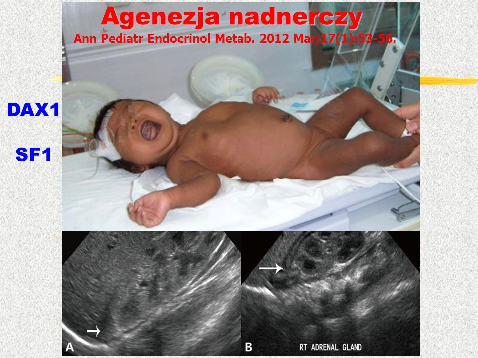 Ann Pediatr Endocrinol Metab. 2012 Mar;17(1):53-56. Agenezja nadnerczy DAX1 SF1
